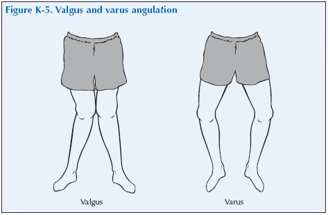 K-5 Valgus and varus angulation