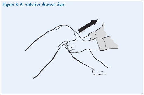K-9 Anterior drawer sign