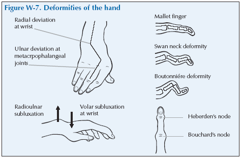 W-7 Deformities of the hand